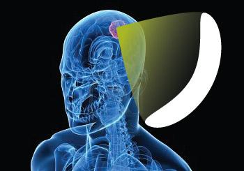 Ničenie nádorov ultrazvukom