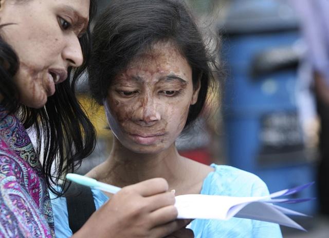 Na snímke ženy, ktoré prežili útok kyselinou
