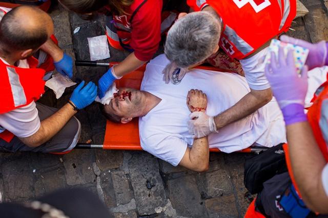 Na snímke záchranári ošetrujú zraneného adrenalínového nadšenca na treťom tohtoročnom behu pred býkmi v rámci osláv sviatku svätého Fermína v meste Pamplona