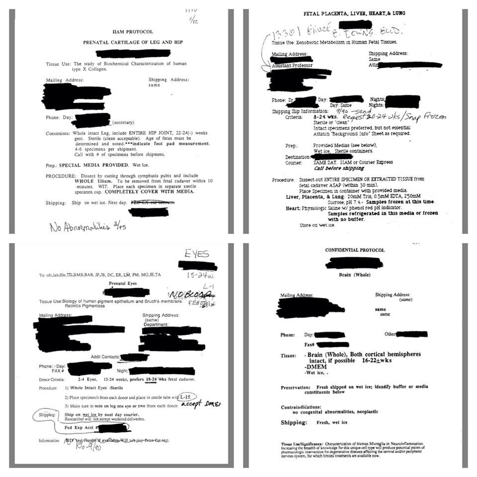 Zdokumentované potvrdenia o objednávkach orgánov nenarodených detí
