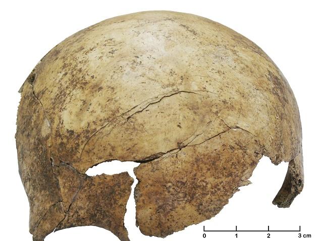 Nález lebky z masového hrobu, na ktorej vidieť stopy po úderoch