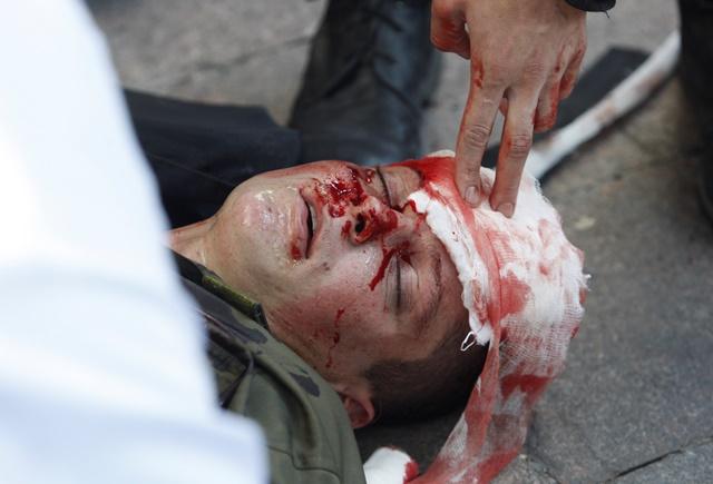 Na snímke zranený policajt dostáva prvú pomoc po zranení granátom počas stretu s nacionalistickými demonštrantmi počas rokovania ukrajinského parlamentu o zmenách v ústave