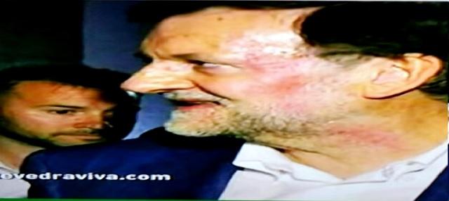 Značka po údere na tvári španielskeho premiéra Mariana Rajoya