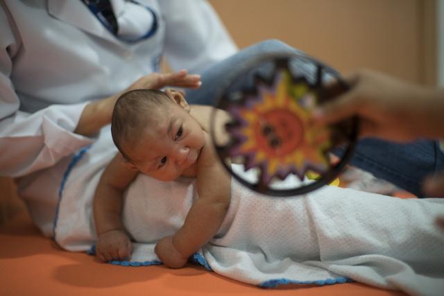 Na snímke brazílsky novorodenec s mikrocefáliou