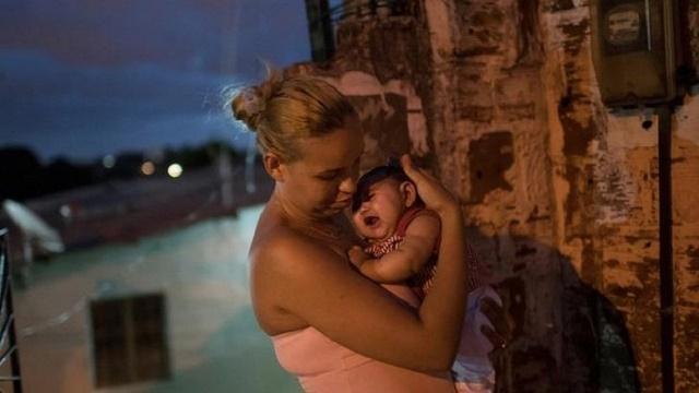 Brazílska matka si túli dieťa narodené s mikrocefáliou