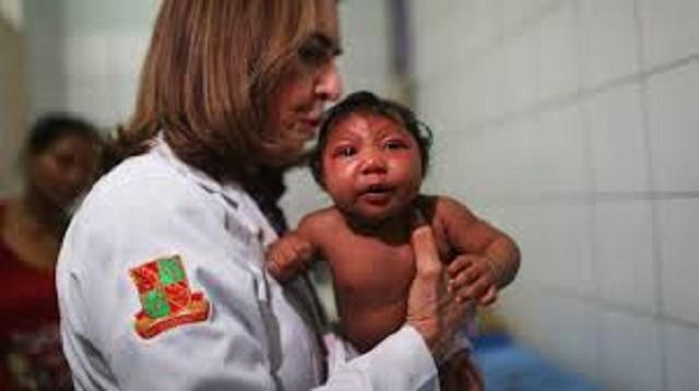 Dieťa postihnuté mikrocefáliou, ktoré sa narodilo v uplynulom roku