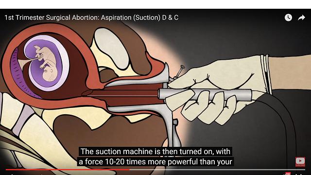 Dieťa v maternici v období prvého trimestra tehotenstva. Lekár práve zavádza katéter, ktorým vysaje dieťa 10-20x väčšou silou než má vysávač, ktorý máte bežne doma