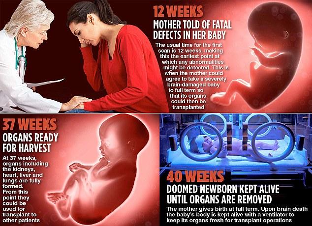 Snímka, ktorá vysvetľuje postup pri odoberaní orgánov postihnutého dieťaťa