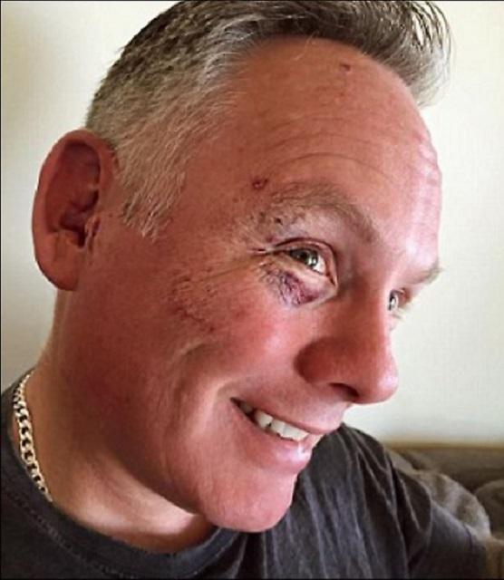 Na snímke Kyle ukazuje drobné poranenia, ktoré utŕžil pri tom, ako pobil ôsmich moslimov