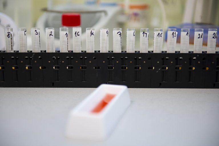 korona covid test vzorky