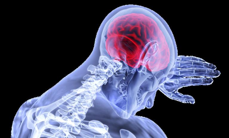 mozog, neurologické ochorenia