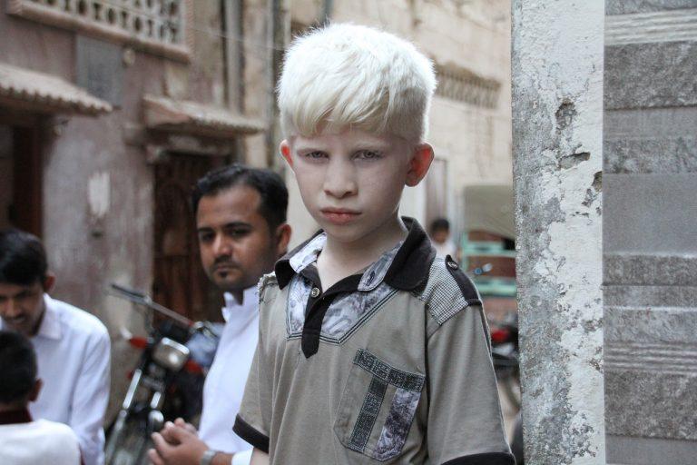 albín
