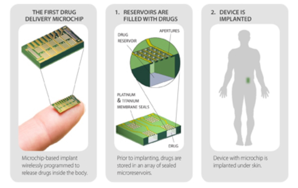 Mikročip dodávajúci liek